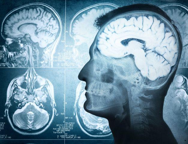 Je brein beïnvloeden